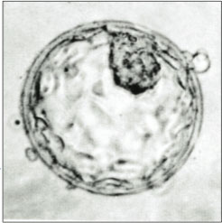 Human blastocyst showing inner cell mass and trophectoderm.