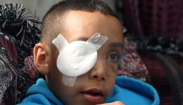 Palestinian boy shot in eye