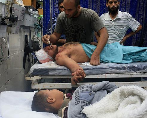 A man and a five year old boy being treated in hospital following the attack on the house AFP/Mohammed Abed